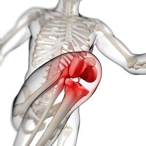 Kondroitin sulfat i osteoartritis koljena